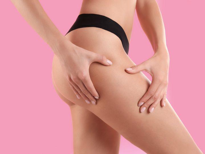 10 reglas básicas para combatir la celulitis